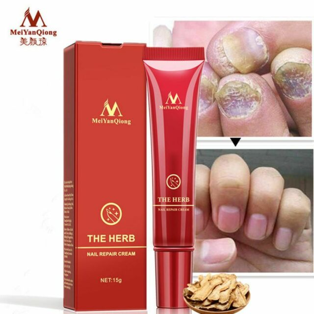 Chinese Herbal Nail Infection Anti Fungal Toe Nail Fungus Treatment Chic