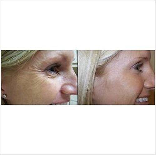 New Face LIFT Ion Galvanic Anti Wrinkle Eye Cheek Tone Firm Scrub Skin Machine