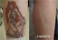 100-Safe-Tattoo-Permanent-Removal-Cream-Pain-Free-tattoo-removal-cream-Remover thumbnail 7