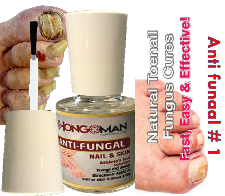 2 ANTI-FUNGAL MAXIMUM STRENGTH TOENAIL FUNGUS ATHLETES FOOT FUNGI NAIL  TREATMENT