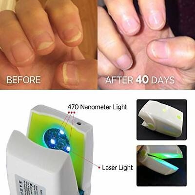 Toenail Fungus Laser Treatment Cure Grey Nail Fungal Laser Therapy Physiotherapy Ebay