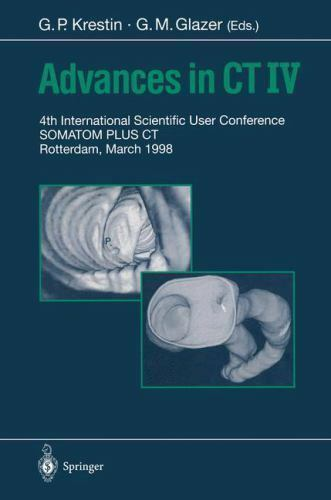 Advances in CT IV : 4th International Scientific User Conference, Somatom...