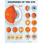 Disorders of the Eye Anatomical Chart by Anatomical Chart Co. (Fold-out book or chart, 2005)