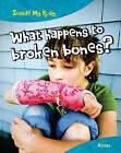 What Happens to Broken Bones?: Bones by Carol Ballard (Paperback / softback, 2011)
