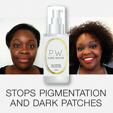 PURE WHITE WHITENING CREAM-GEL STOP HYPER PIGMENTATION DARK SPOTS 100% SAFE