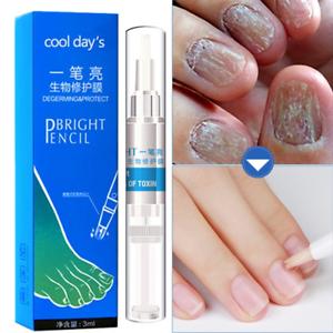 Nail Treatment Pen Paronychia Anti Fungal Infection Onychomycosis ...