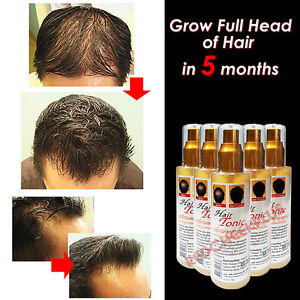hair growth tonic regrowth bald patch thinning spot anti