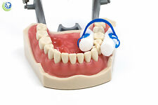 Dental Disposable Cotton Roll Holder Clip Isolator Non Sterile