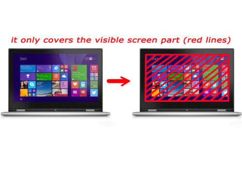 15.6/'/' Anti-glare LCD Cover for Dell XPS 15-9550 15-9560 15-9570 Keyboard Skin