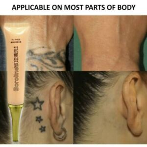 Details About 100 Safe Tattoo Permanent Removal Cream Pain Free Maximum Strength Remover Aa