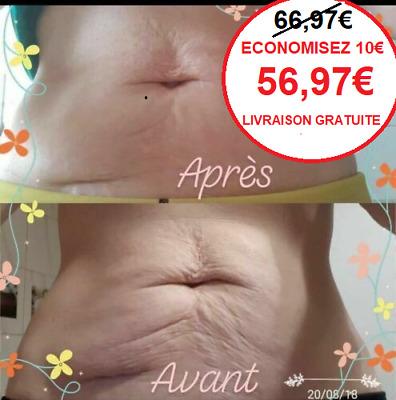Cellulite Vergeture Varice Acné Cicatrisation Psoriasis ...