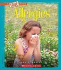 Allergies by Ann O Squire (Hardback, 2015)