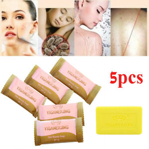 5x-Sulfur-Soap-oil-control-Acne-Treatment-Blackhead-Remover-Clean-Skin-Care-SO