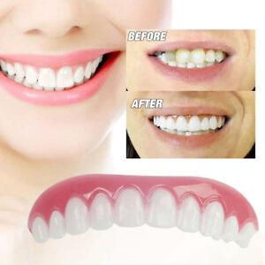 Details about Cosmetic Smile Instant Teeth Veneers Snap On Comfort Upper  Tooth Covers IC1U