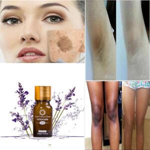 50ml-Ultra-Brightening-Spotless-Oil-Skin-Care-Natural-Pure-Remove-Ance-DE