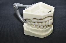 Vintage Columbia DENTOFORM w/ gold filling Dentist Plastic Teeth Mold dentistry