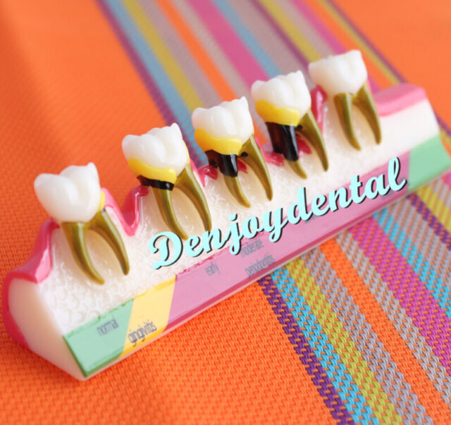 HOT Dental Periodontal Disease Assort Tooth Teeth Typodont Study Teaching Model