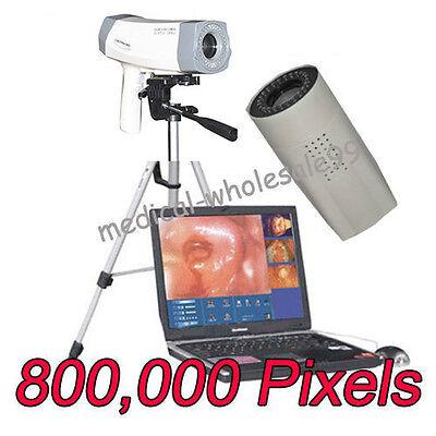 2015 Digital Video Electronic Colposcope SONY 800,000 Pixels Camera Gynaecology