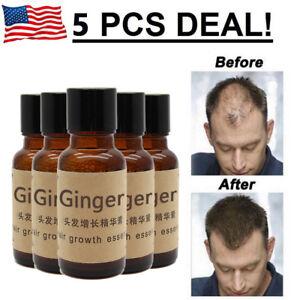 5-X-Hair-Growth-Essence-Oil-Loss-Treatment-Natural-Liquid-Organic-Fast-Regrowth