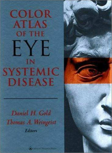 """""""Color Atlas of the Eye in Systemic Disease-ExLibrary by Weingeist, Thomas A. """""""