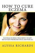 How to Cure Eczema : Natural Eczema Treatment to Get Rid of Skin Problems...