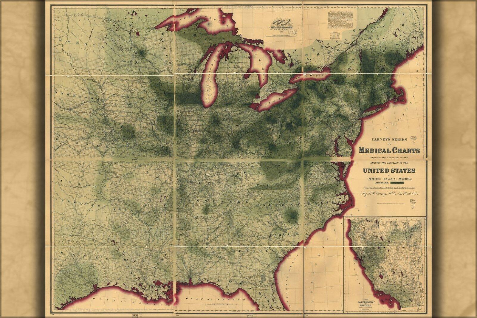 Plakat, Viele Größen; Karte von Typhoid Fever in Vereinigte Staaten Of America