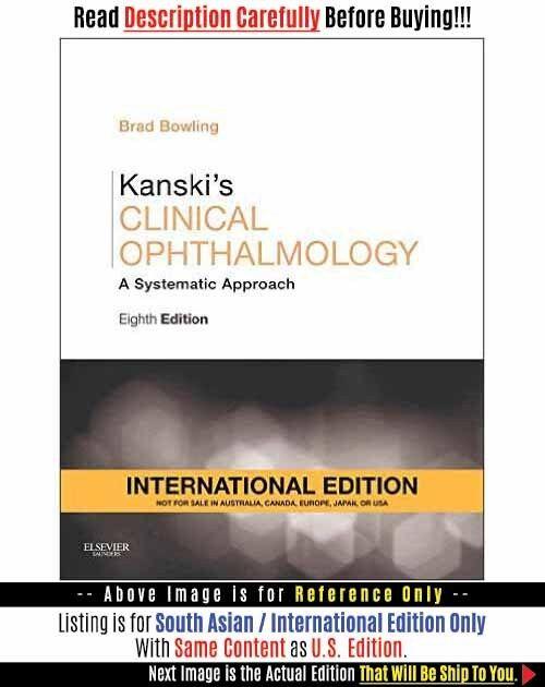 Ophthalmology ebook kanski