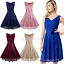 Lace-Bridesmaid-Party-Dresses-Short-Homecoming-Formal-Prom-Cocktail-Dress-V-Neck thumbnail 1