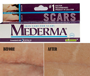1X-Mederma-Skin-Care-for-Scars-STRETCH-MARK-REMOVAL-ACNE-Treatment-BURN-10-gm