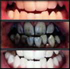 Activated Charcoal Teeth Whitening 100% Organic Coconut Powder Carbon Coco nut