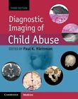 Diagnostic Imaging of Child Abuse by Cambridge University Press (Hardback, 2015)