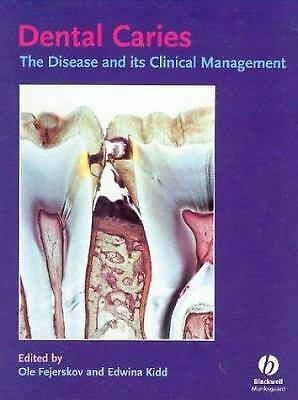 Dental Caries : The Disease and Its Clinical Management by Fejerskov, O.