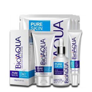 Anti-Acne-Set-Face-Care-Treatment-Scars-Set-Anti-Acne-Removal-Gel-Whitening-4pcs