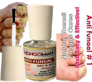 ANTI-FUNGAL MAXIMUM STRENGTH TOENAIL FUNGUS ATHLETES FOOT FUNGI NAIL ...