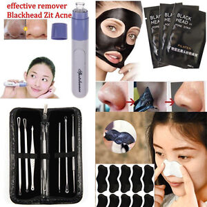 Facial-Pore-Cleanser-Cleaner-Face-Blackhead-Zit-Acne-Remover-Skin-Cleansing-Tool