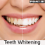 miniature 2 - Charcoal Teeth Whitening 100% Natural Activated Coconut Organic Powder
