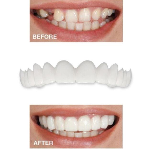 Smile Teeth Veneers Comfort Fit Flex Cosmetic Dentistry Snap on Instant