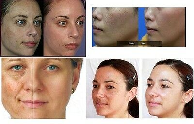 Skin lightening whitening Face Body cream brown pigmentary patches Sun damage
