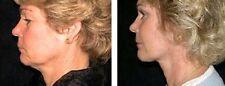 Estimulación Muscular Anti Arrugas Flacidez Cuello Papada Flacidez máquina de tono