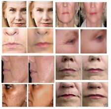Advanced Skin Whitening Kojic Acid,MAP Vitamin C,Arbutin,Niacinamide,HA Serum