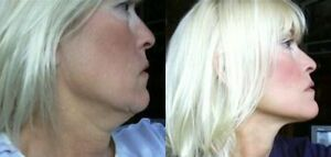 Details about Instant Face Lift, Neck Lift and Eye Lift Tapes Refill 40  piece! Refill Facelift
