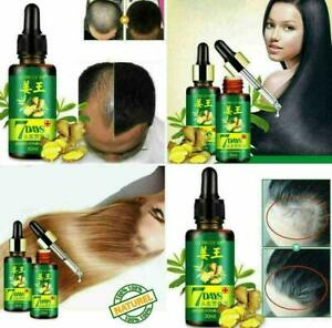 Health-Ginger-Germinal-Serum-Natural-Essence-Oil-Loss-Treatment-Growth-Hair-30ml