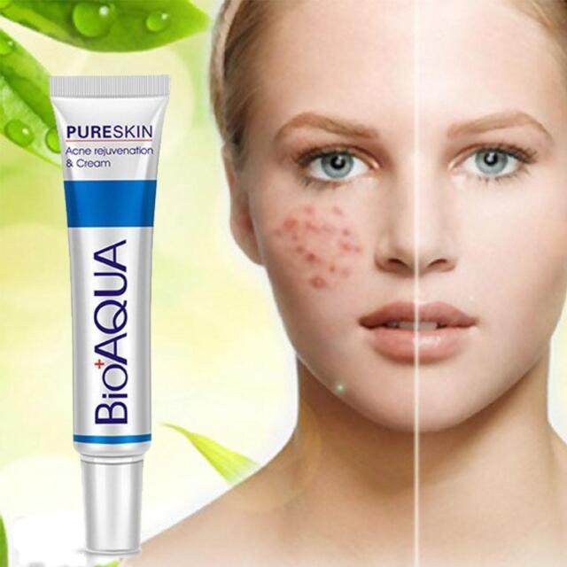 BIOAQUA Face Treatment Acne Scar Pore Removal Gel Stretch Marks Cream Blemish TB