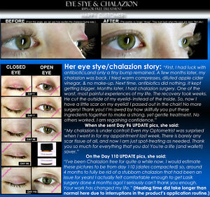 Home Eye Stye Treatment Chalazion Treatment Eyelid Infection Remedy