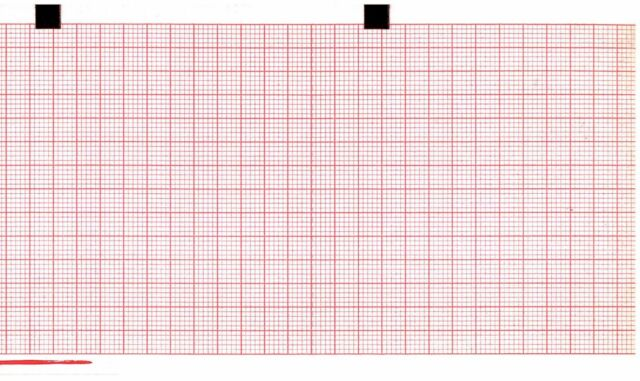 Ecg Paper 80mm X 70mm X 300sheets Works For Schiller At101