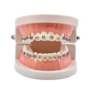 Dental-Zaehne-Malokklusion-Kieferorthopaedische-Modell-Mit-Voll-Metall-Klamme-H0A9