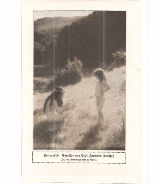 KNACKFUß  Hermann - SONNENBAD - alter Druck - old print - Illustration