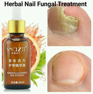 nail infection treatment