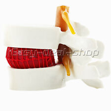 Human Anatomy Skeleton Spine Lumbar Disc Herniation Medical Instrument Model New