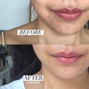 20 G Mederma Gel Remove Scars Treatment Burn Keloid Acne Scar